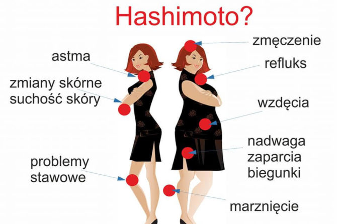 CHOROBA HASHIMOTO